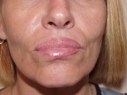 Lip Augmentation 07 Patient Before
