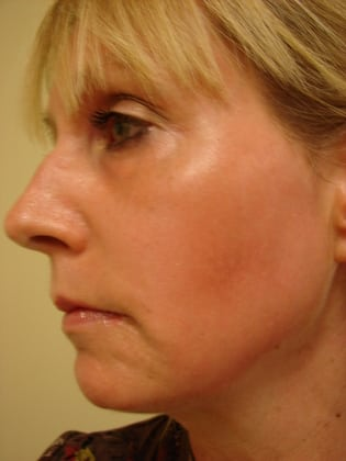 Laser Resurfacing 01 Patient After