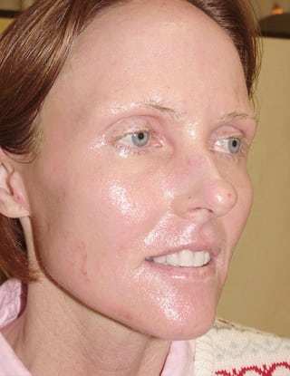 Laser Resurfacing 03 Patient After