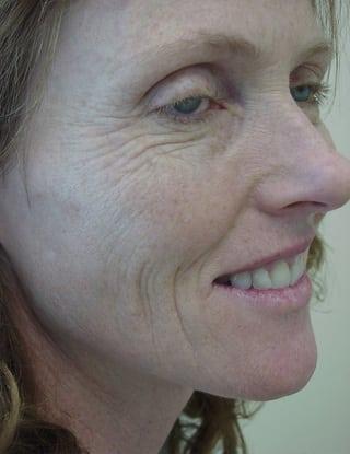 Laser Resurfacing 03 Patient Before