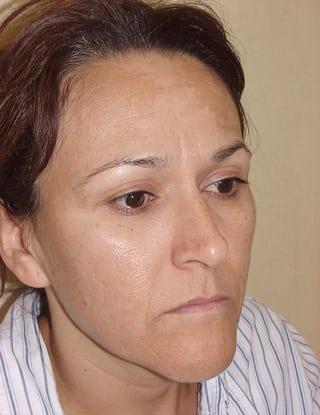Laser Resurfacing 04 Patient Before