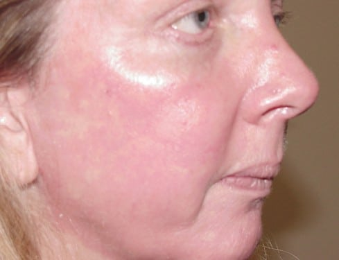 Laser Resurfacing 05 Patient After
