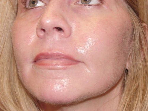 Laser Resurfacing 07 Patient After