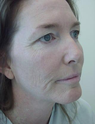 Laser Resurfacing 09 Patient Before