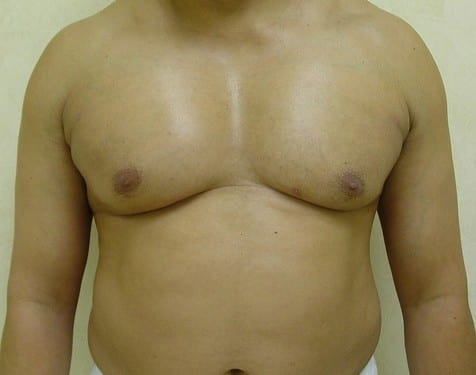 Male Chest Implant 01 Patient After