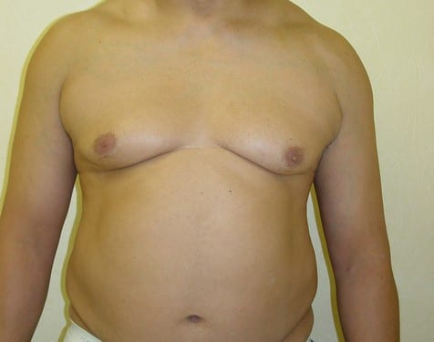 Male Chest Implant 01 Patient Before
