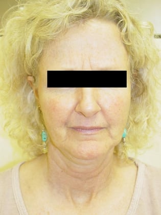 Neck Lift 10 Patient Before