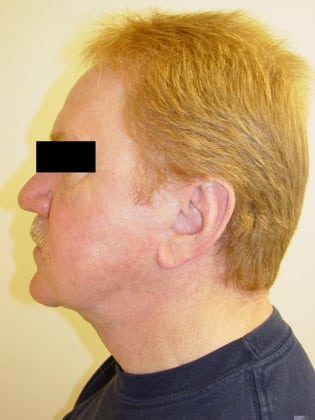 Neck Lift 12 Patient After