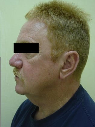 Neck Lift 12 Patient Before