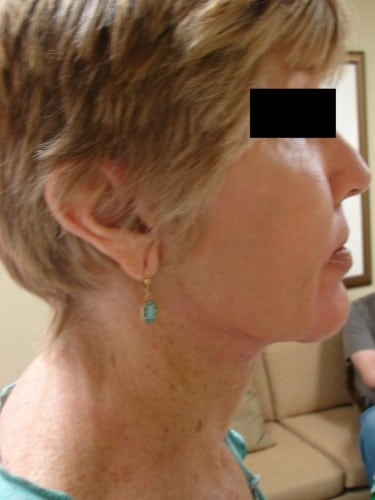 Neck Lift 13 Patient After