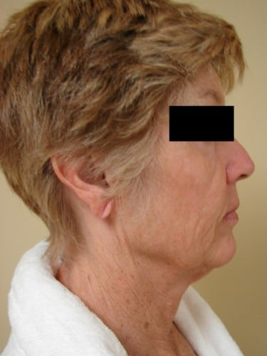 Neck Lift 13 Patient Before