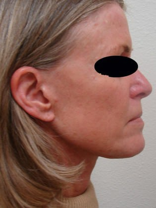 Neck Lift 03 Patient After