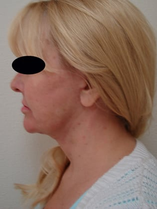 Neck Lift 04 Patient After