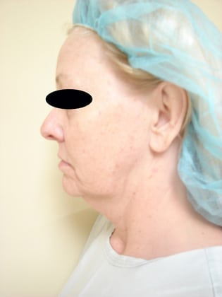 Neck Lift 04 Patient Before