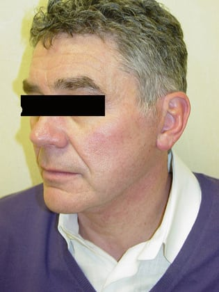Neck Lift 05 Patient After