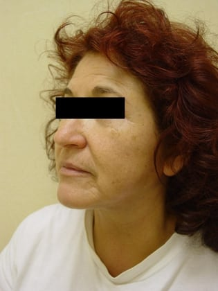 Neck Lift 07 Patient After