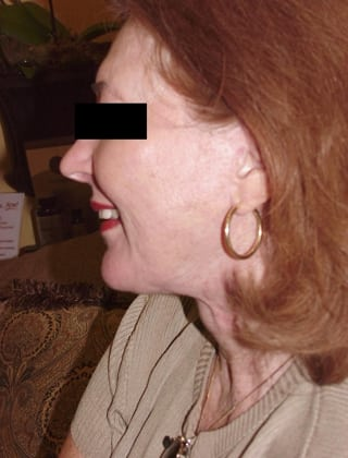 Neck Lift 08 Patient After
