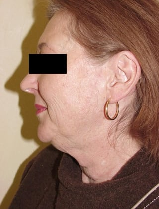 Neck Lift 08 Patient Before