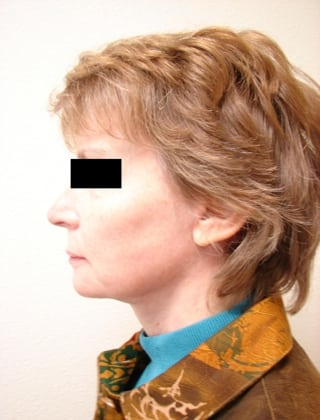 Neck Lift 01 Patient After