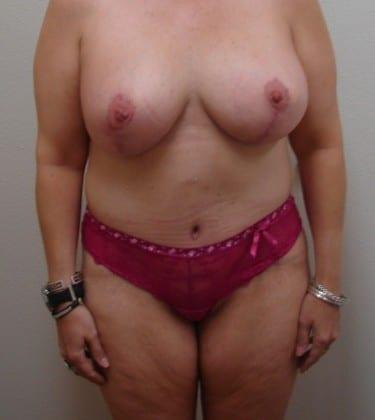 Abdominoplasty 10 Patient After