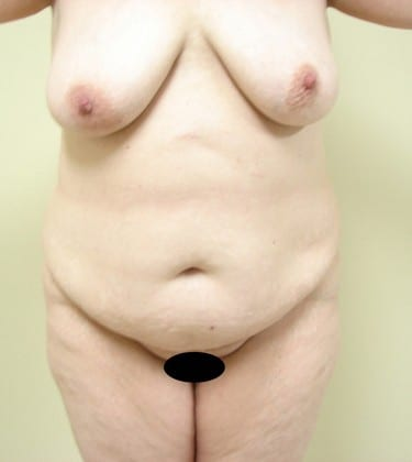 Abdominoplasty 10 Patient Before