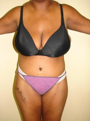 Abdominoplasty 11 Patient After