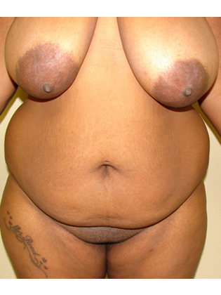 Abdominoplasty 11 Patient Before
