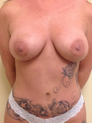 Abdominoplasty 12 Patient After