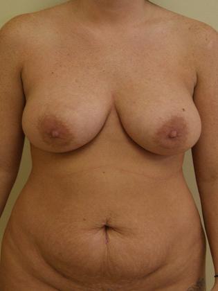 Abdominoplasty 12 Patient Before