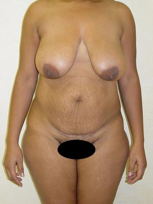 Abdominoplasty 07 Patient Before