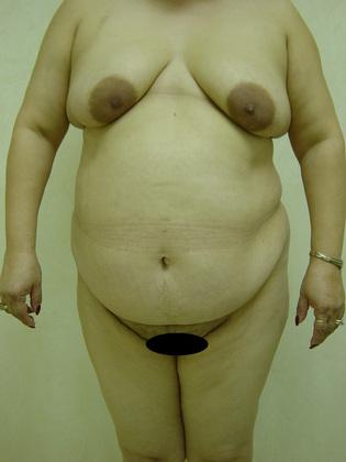 Abdominoplasty 08 Patient Before