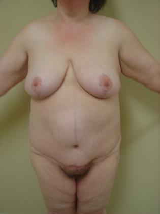 Abdominoplasty 09 Patient After