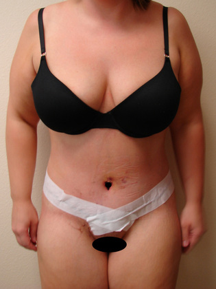 Abdominoplasty 06 Patient After
