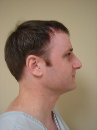 Rhinoplasty 10 Patient Before