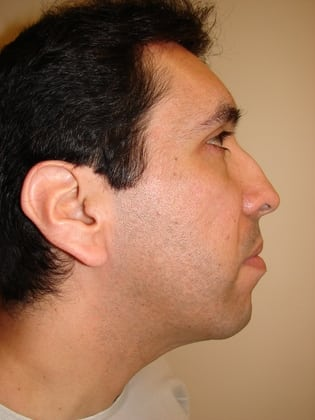Rhinoplasty 11 Patient Before