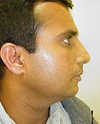 Rhinoplasty 17 Patient After