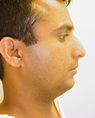 Rhinoplasty 17 Patient Before