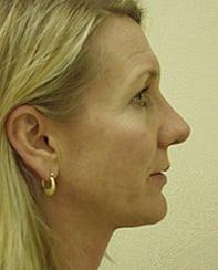 Rhinoplasty 21 Patient After