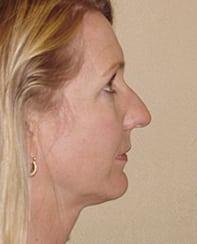 Rhinoplasty 21 Patient Before