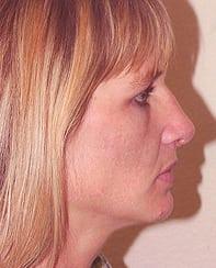 Rhinoplasty 24 Patient After