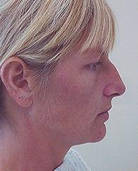 Rhinoplasty 24 Patient Before
