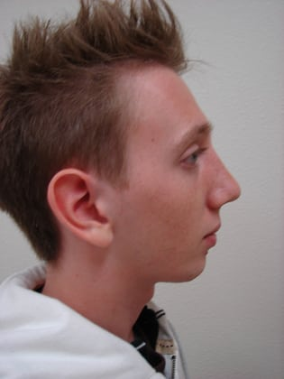 Rhinoplasty 02 Patient After