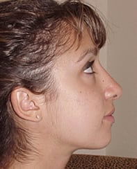 Rhinoplasty 03 Patient After