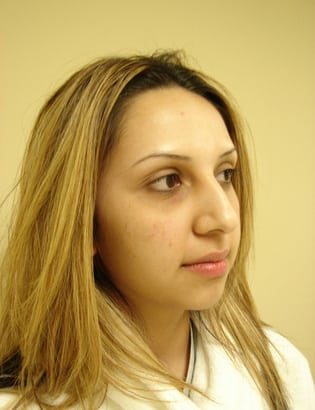 Rhinoplasty 06 Patient Before
