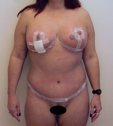 Tummy Tuck 19 Patient After