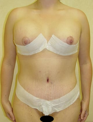 Tummy Tuck 04 Patient After