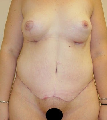 Tummy Tuck 10 Patient After