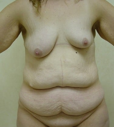 Tummy Tuck 10 Patient Before