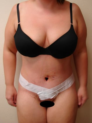 Tummy Tuck 12 Patient After