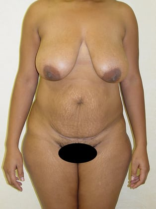 Tummy Tuck 13 Patient Before